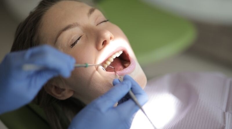 Here's All You Need To Know to Get Over Crooked Teeth